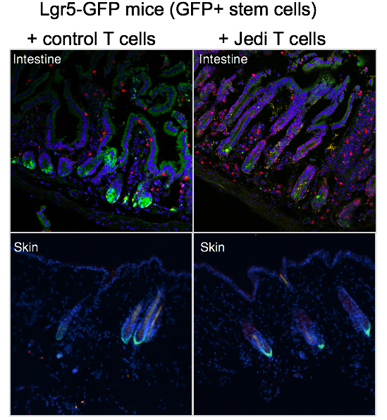 Images from  Agudo et al.  showing the Lgr5+ intestinal stem cells being cleared by the Jedi T cells but the Lgr5+ hair follicle stem cells being spared in the same mice.