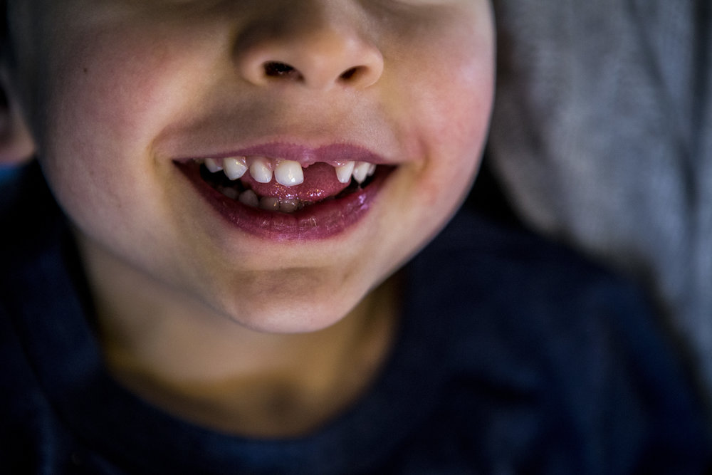 Child portraiture featuring authentic image of child's missing tooth in CT.