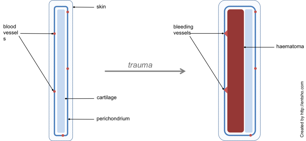 Figure 2.  Haematoma formation. The diagram shows a cross-sectional view of a pinna before and after trauma. Shearing forces tear the well-vascularised perichondrium off the underlying cartilage, leading to haematoma formation. This leads to loss of the vascular supply.