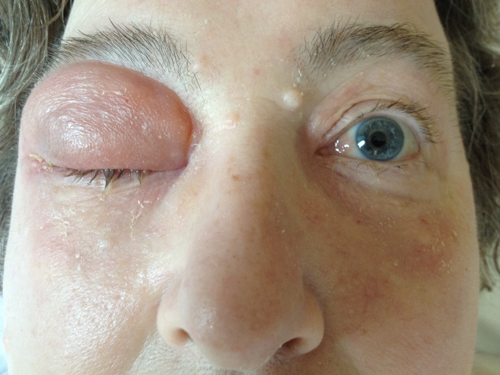 Photo: right pre-septal (Chandler I) cellulitis. Note how the erythema is clearly confined to the eye lid.