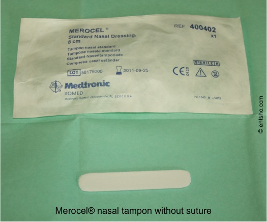 Merocel nasal tampon without a suture - if you come across these, secure a suture to one end before use