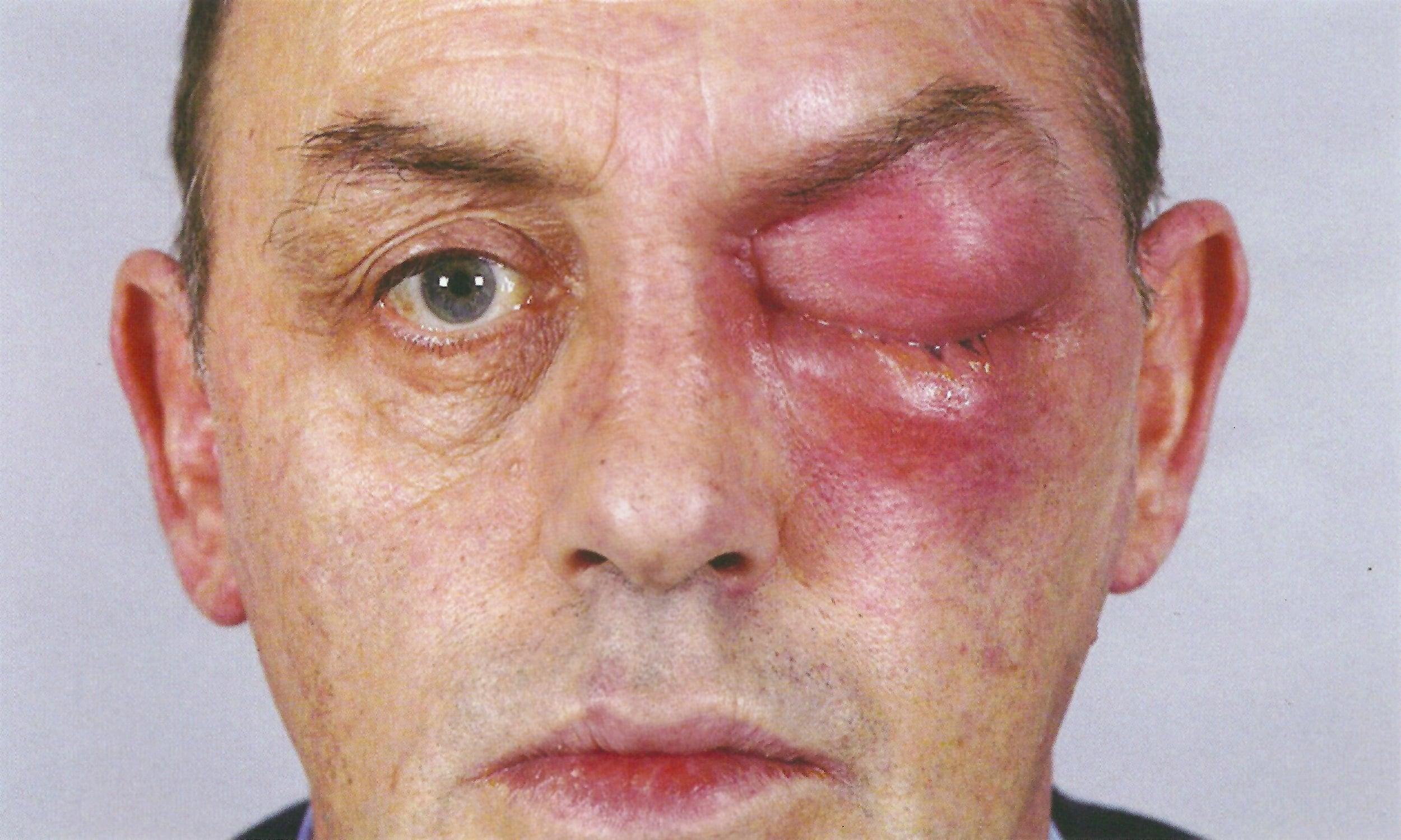 Простатит отекает лицо такое приятное лечение простатита