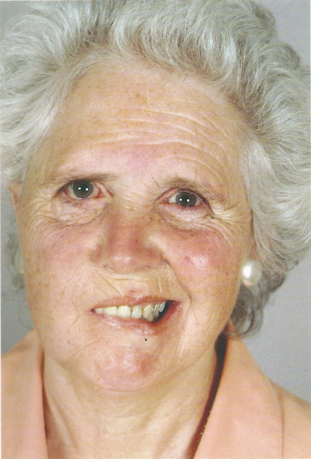 Photo - Right lower motor neurone facial palsy. Note the loss of the forehead and brow furrows as well as the nasolabial fold on the right. Similarly, the right depressor angulae oris is weak.