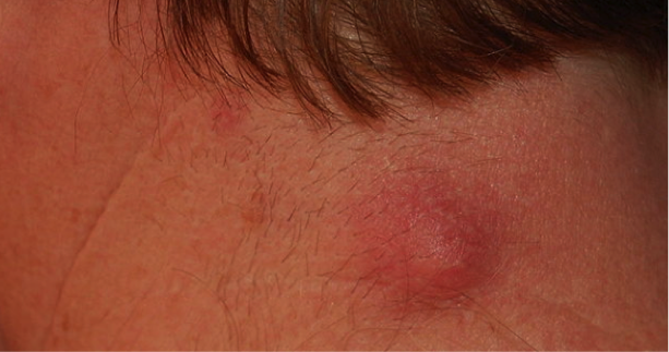 Figure 1. A non-infected sebaceous cyst in a typical area, the nape of the neck.