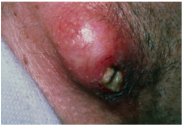 Figure 2. Infected sebaceous cyst of the nape of the neck, with central punctum discharging cheesy or pus-like material. If examination revealed this to be non-pulsatile and confined to the skin, immediate aspiration would bring significant relief.