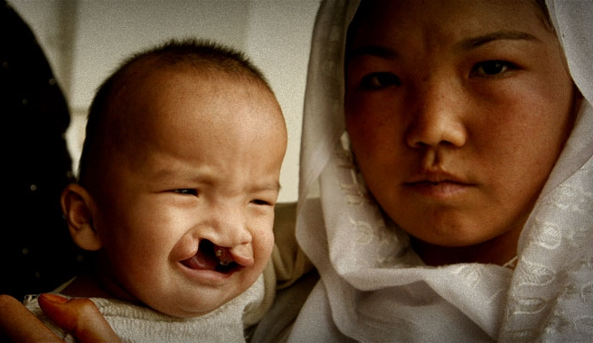 Every year more than 170,000 children in the developing world are born with cleft lip and/or palate. Most can't afford surgery.