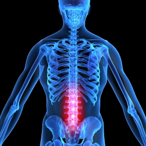 back pain picture.jpg