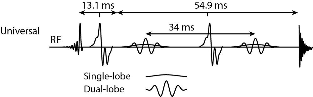Figure 1:  Pulse sequence diagrams indicating RF pulse shapes and timings for the vendor-native Philips, Siemens, GE and Canon sequences, and the universal sequence at TE = 68 ms.