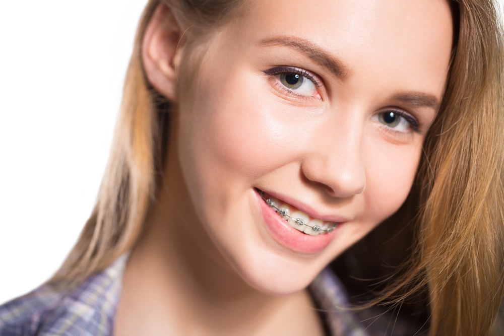 traditionalbraces