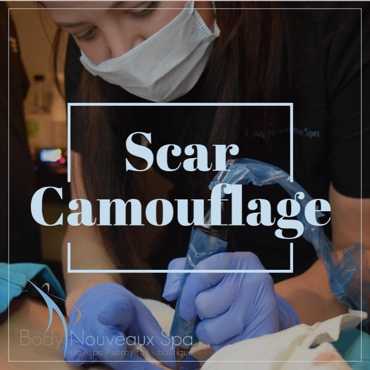 What scars can be treated: - - C-Section scars                          - Stretch marks                          -Some Acne Scars- Cosmetic and reconstructive surgery scars on face and body, (breast augmentations, tummy or face tucks)- Other surgery, trauma or accident scars- Self-harm scars- Burns