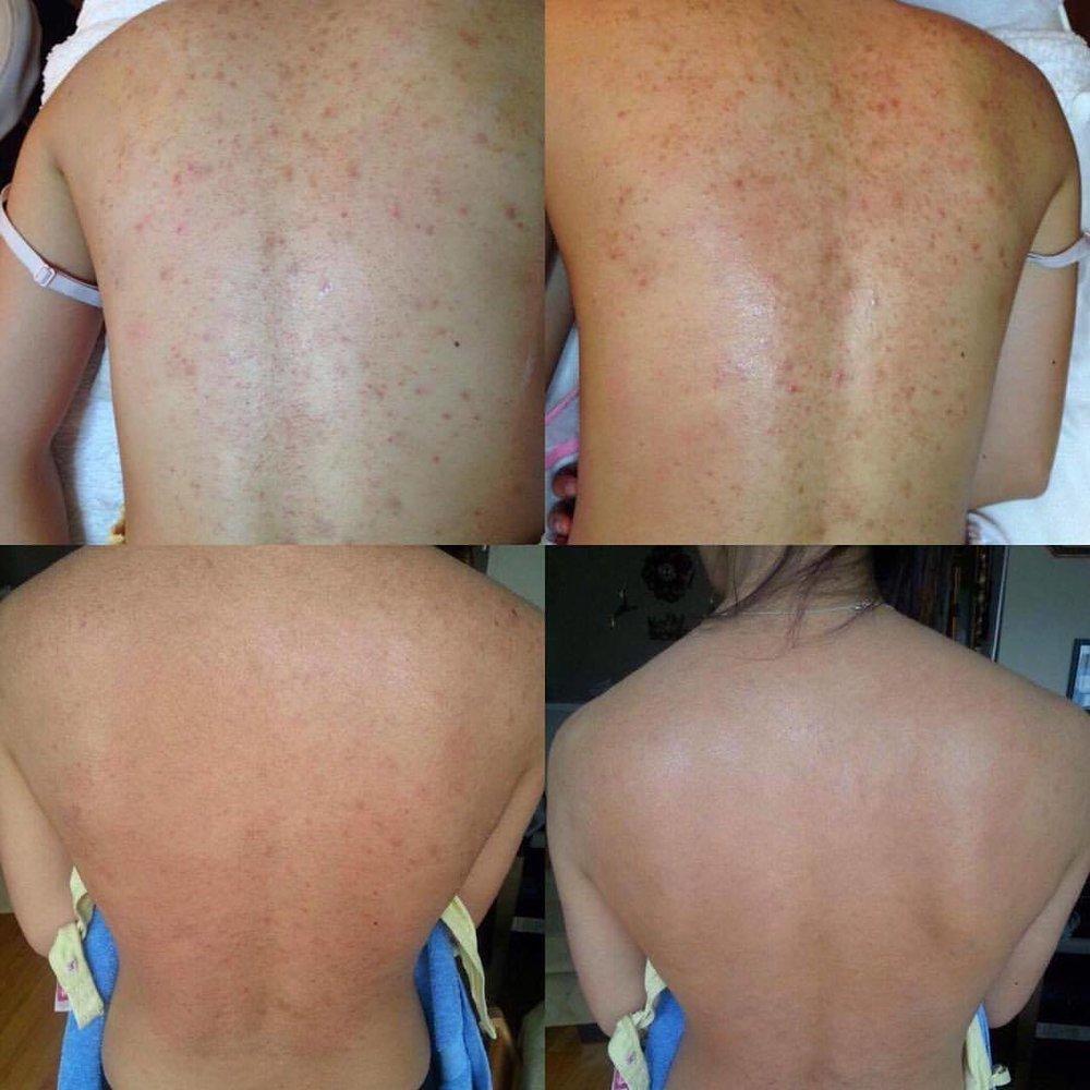 back acne.jpg