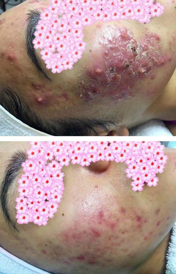 beforeafter pimple.jpg