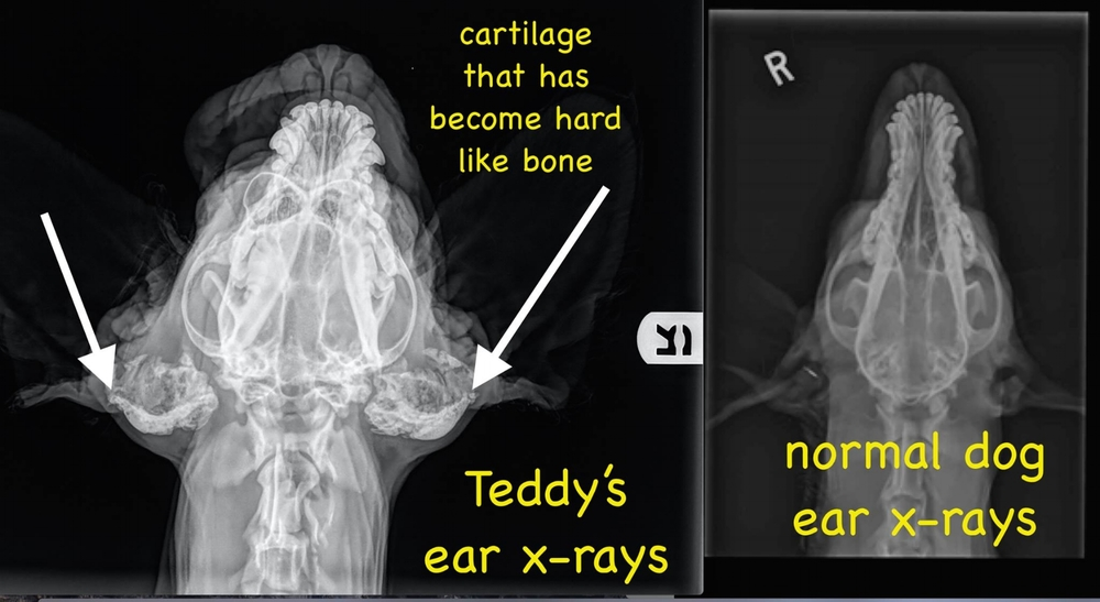 Indicated by the arrows, this cartilage looks to have the same density as his actual bones.