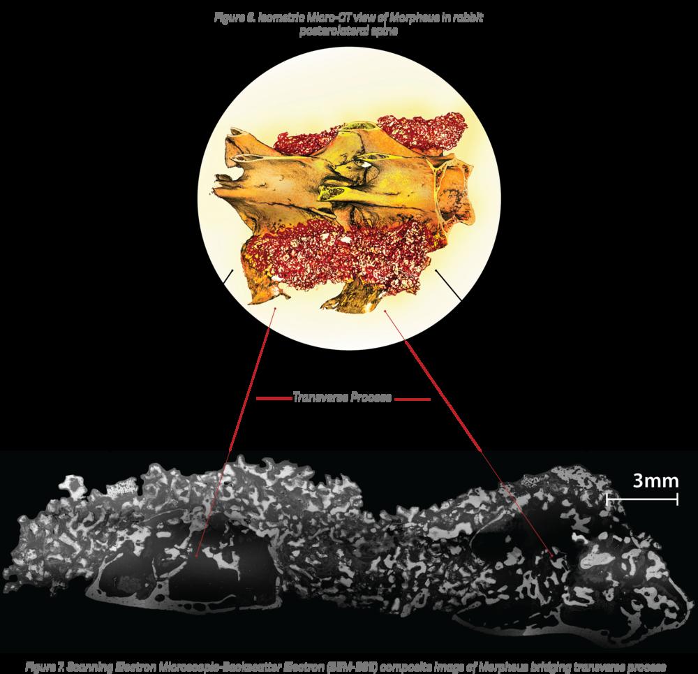 Micro CT image Morheus in rabbit spine