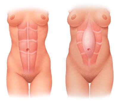 Diastasis Recti in women - Image source: Mayo Clinic