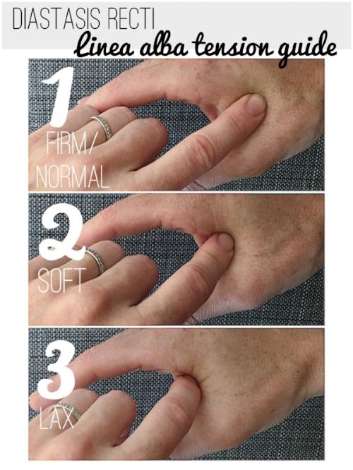 example of how to test for diastasis recti