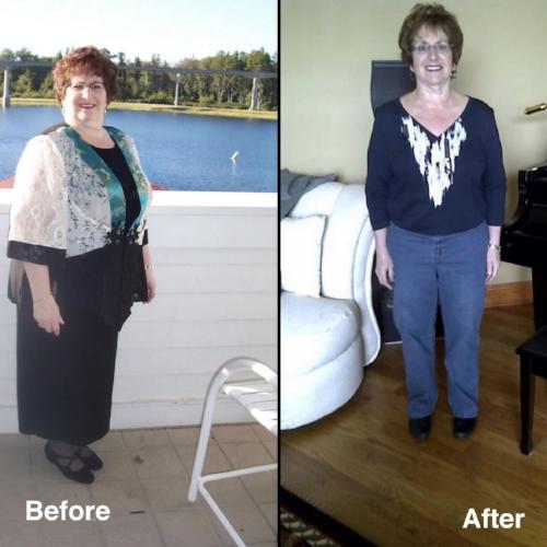 Arlene Lost 50 lbs. -