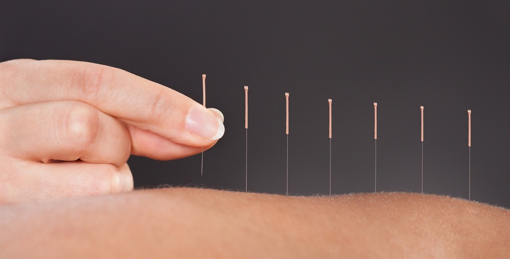 What to Expect During your First Acupuncture Treatment