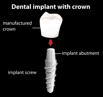 This image shows the three components of a dental implant