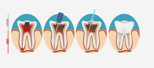 Images showing root canal procedure as is often performed in our dental office