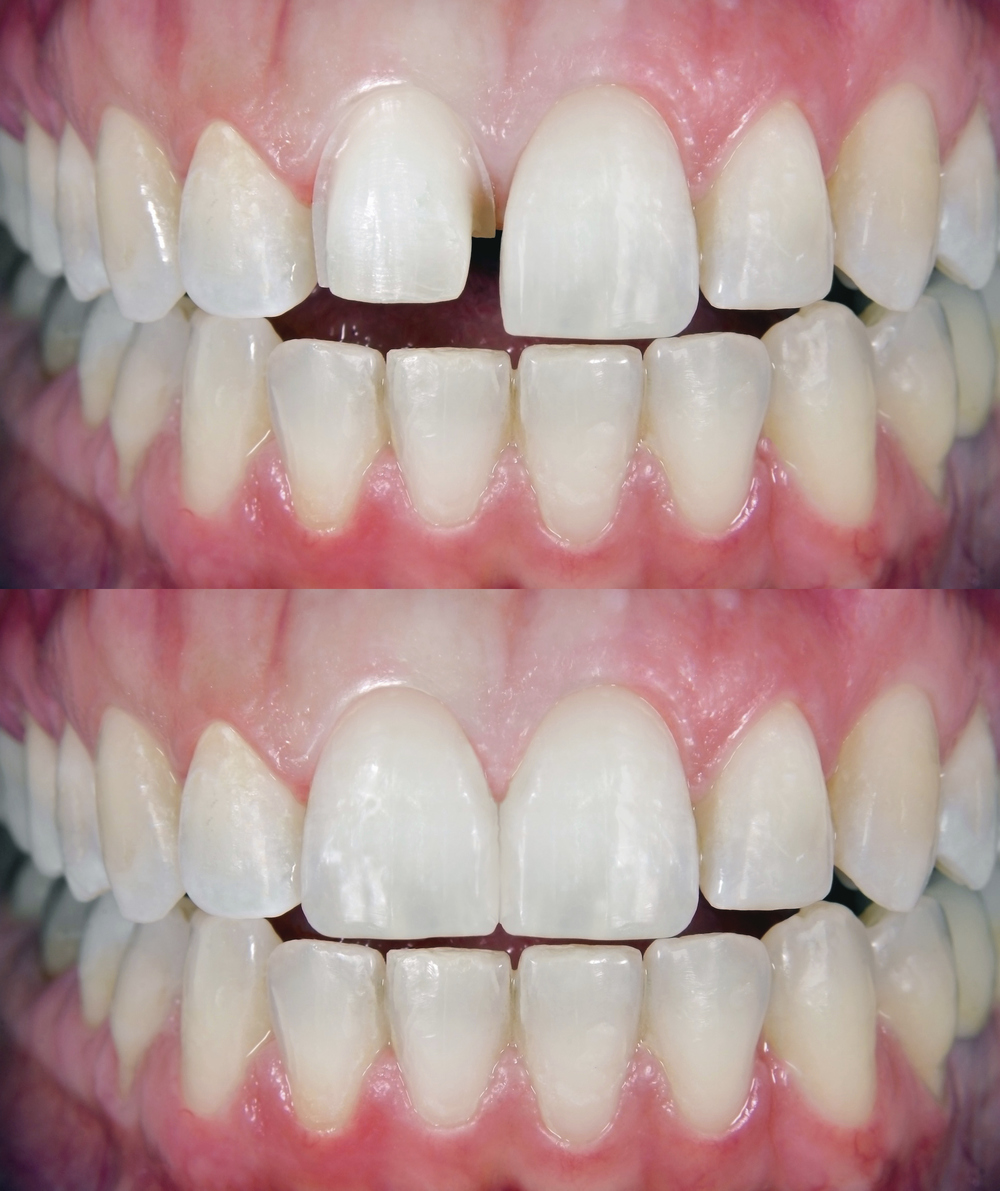 the above image illustrates how our los alamitos dental office can transform your teeth and your smile with high quality dental veneers!