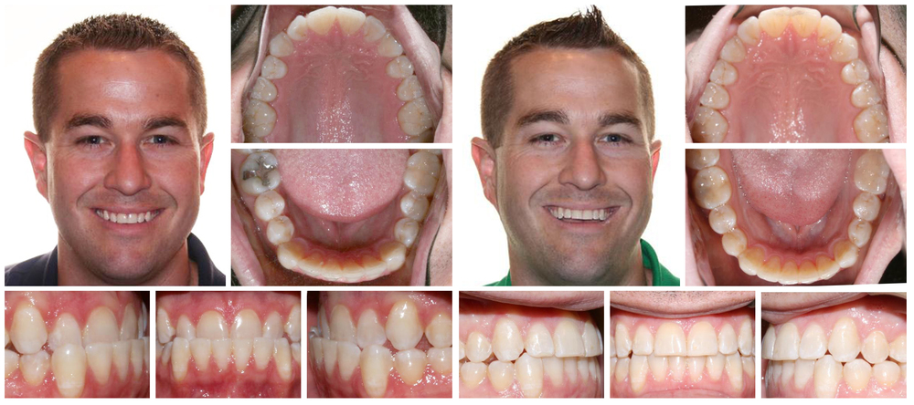 Adult male composite before & after Invisalign