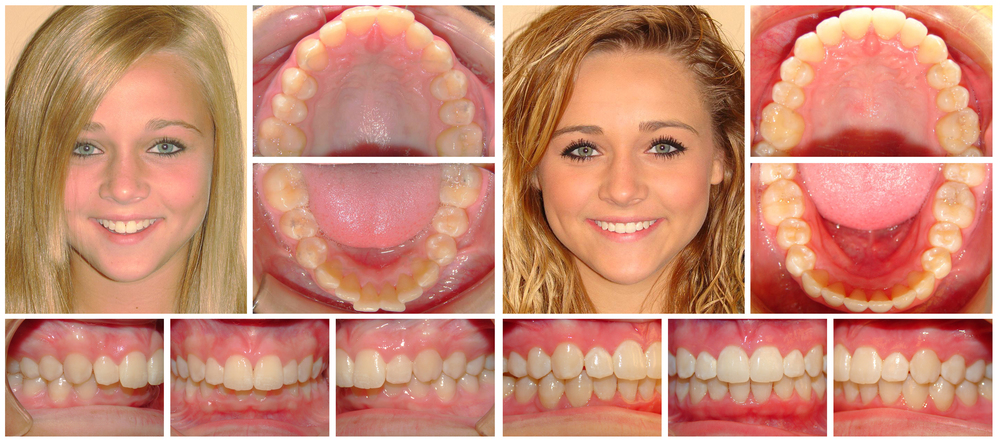 Teen girl 2 composite before & after Invisalign