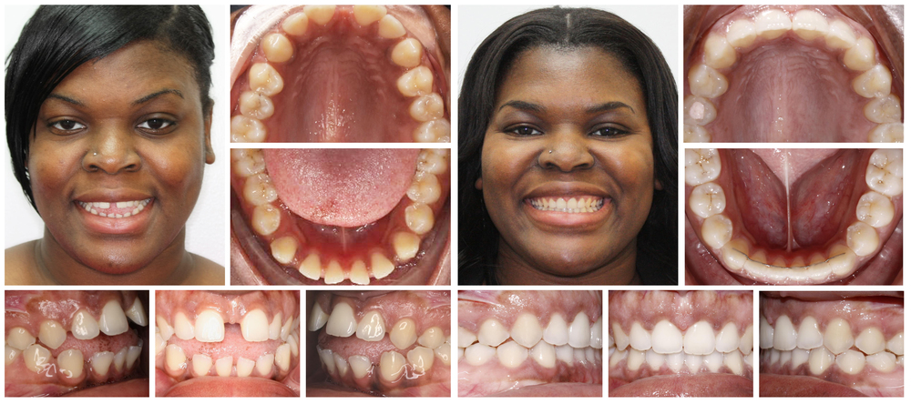 Woman 2 composite before & after Invisalign treatment