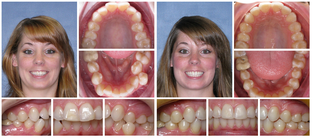 Woman composite before & after Invisalign