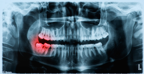Digital Dental X-Rays can help identify problem areas and result in significantly less exposure to radiation over traditional Dental X-Rays