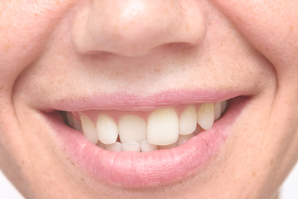 Crooked Teeth Are Very Common But Can Have Negative Health Consequences
