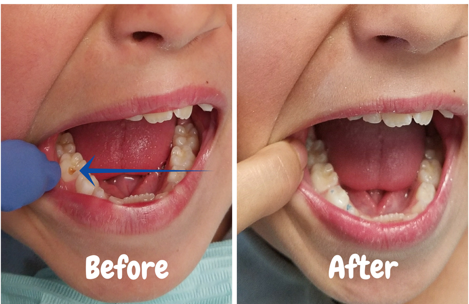 image of our patient's cavity before and after dental filling.  click for larger image.
