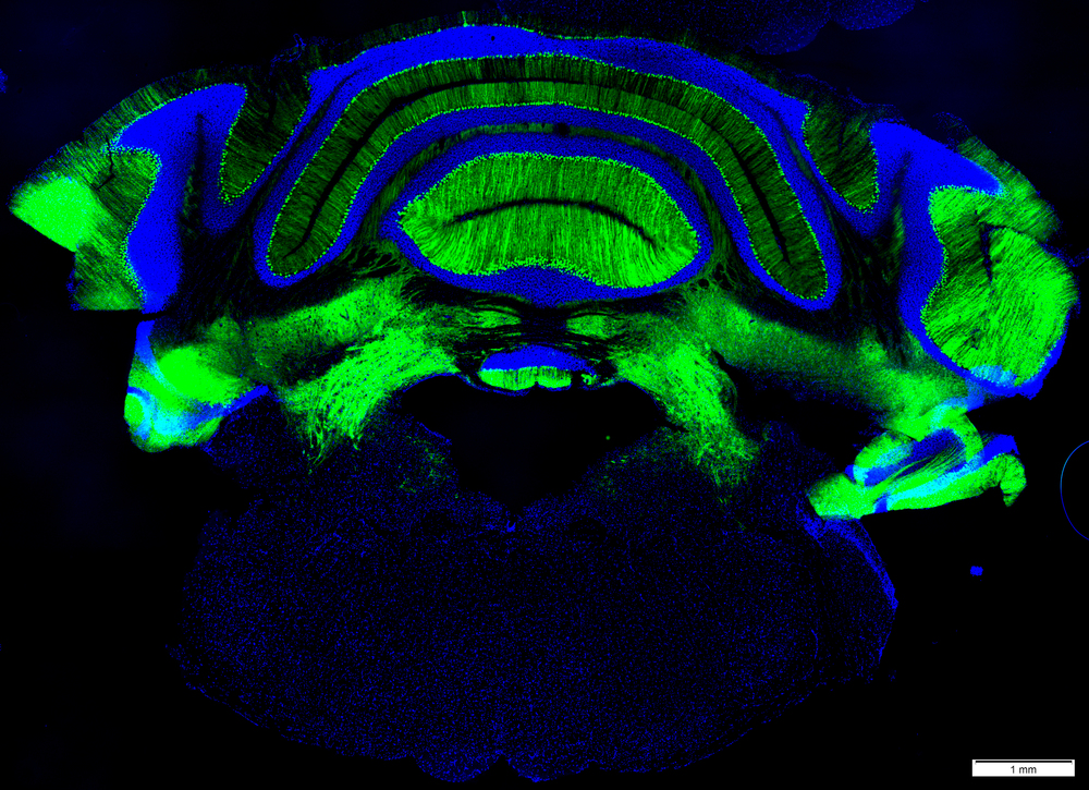 Coronal slice of the hindbrain & cerebellum (top), with GABA producing neurons in green