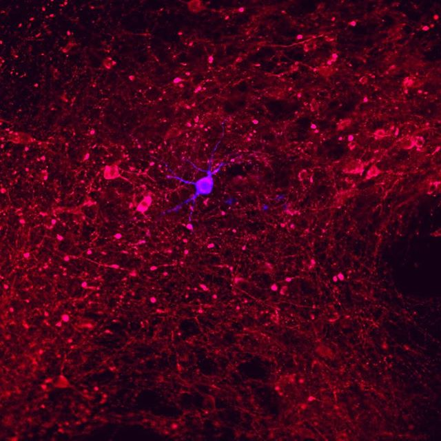 Here's an image of a single dopamine-producing neuron that we recorded (in blue). You can see that it's basically in a sea of other dopamine-producing neurons (in red), each of which has an average of several thousand synaptic connections to other neurons - either nearby or elsewhere in the brain. These particular dopamine neurons are central to the rewarding effects of drugs, from alcohol and nicotine, to amphetamine, heroin, and cannabis. Even non-drug related activities like gambling activate these dopamine neurons, so understanding how they work will help us to better understand drug-taking and compulsive behaviors, as well as develop treatments for addiction.