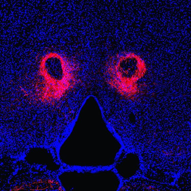 Every now and then, I look down my microscope eyepiece and see something that looks like a face staring back at me. What you see in red are virus-infected neuronal fibers that are basically tricked into manufacturing red fluorescent proteins in a ring (that look like eyes to me), while in blue, you see all of the cellular nuclei in the area. The dark area in the middle is a ventricle, which is a cavern in the brain in which cerebral spinal fluid circulates, delivering nutrients and ushering out cellular waste.