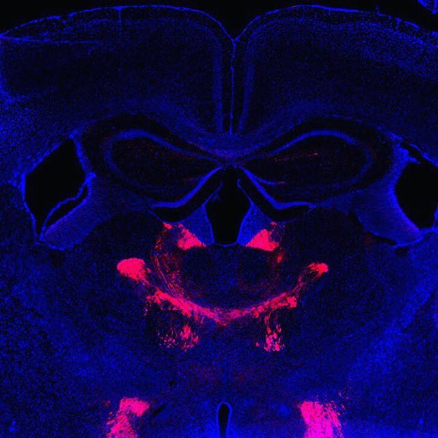 Happy Halloween! . This is a mouse brain that's been infected with a virus that causes neurons to make red fluorescent proteins, which fills their cell bodies and their projections. We can use this technique to map out which brain regions communicate with one another on a circuit and molecular level, which can help us to develop better treatments for things like addiction, depression & suicide, and Alzheimer's & dementia.