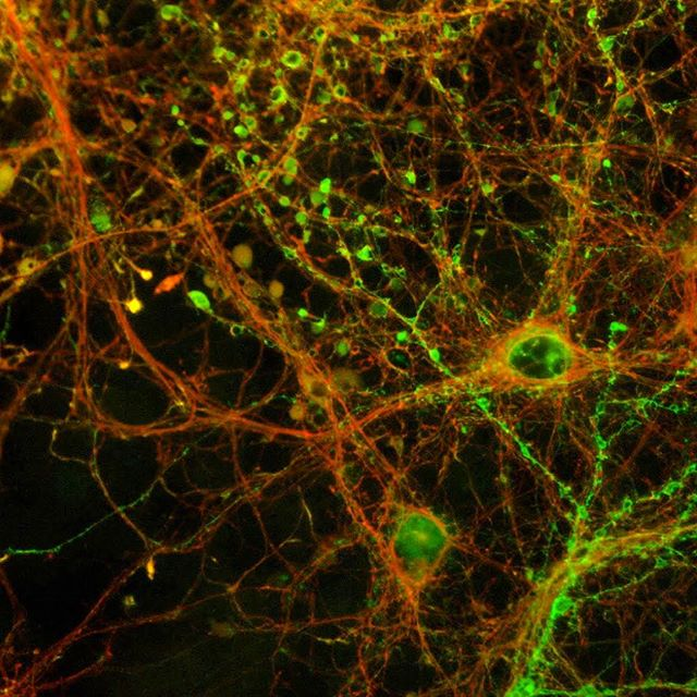 Another beautiful collection of hippocampal neurons infected with an engineered virus that causes neurons to turn fluorescent red, and then green once they fire impulses. We can use a tool like this to identify which neurons are involved in things like the effects of drugs or visual perception.