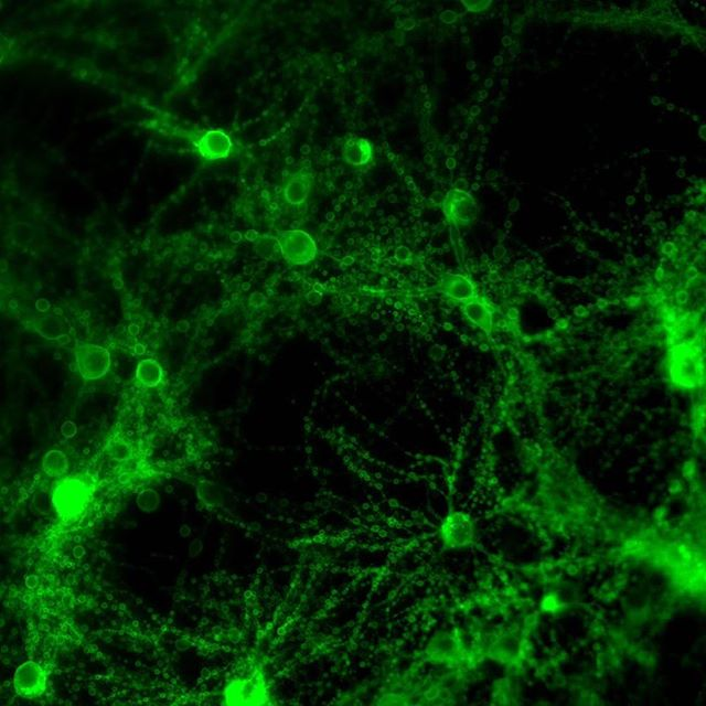 Here's a super weird image I took of some neurons in a petri dish that were infected with a virus that seemed to turn them into…balloon animal versions of neurons. This wasn't quite what we were going for (neurons don't look so…bubbly…when they're happy) – but I thought it just looked pretty cool. The reason they're green is that the virus caused them to manufacture an engineered channel that enables us to control when and where they fire impulses (action potentials) by using blue light. Pretty neat that even mistakes in molecular biology can be pretty beautiful. . . . . . . . #brain #neuroscience #microscope #science #beautiful #awesome #dopamine #scienceisawesome #sciencerules #scienceart #scienceclass #sciencerocks #scienceiscool #nature_lovers #nature_hub #natureinside #natureisart #green #neuron #biology #life