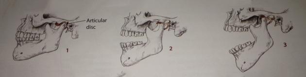 TMJ-articular disc movement fig 1