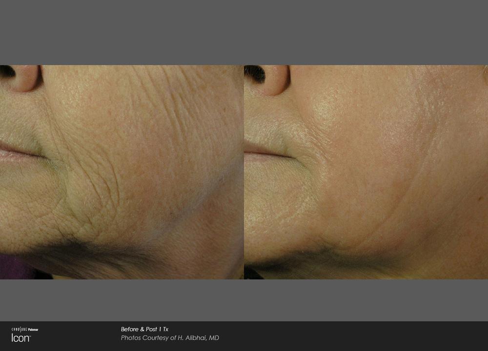 Icon-2940-1540-combo-Alibhai-wrinkle-prepost1Tx.jpg