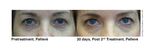 1-Pelleve-Before-After-Lemke-eyes3.jpg