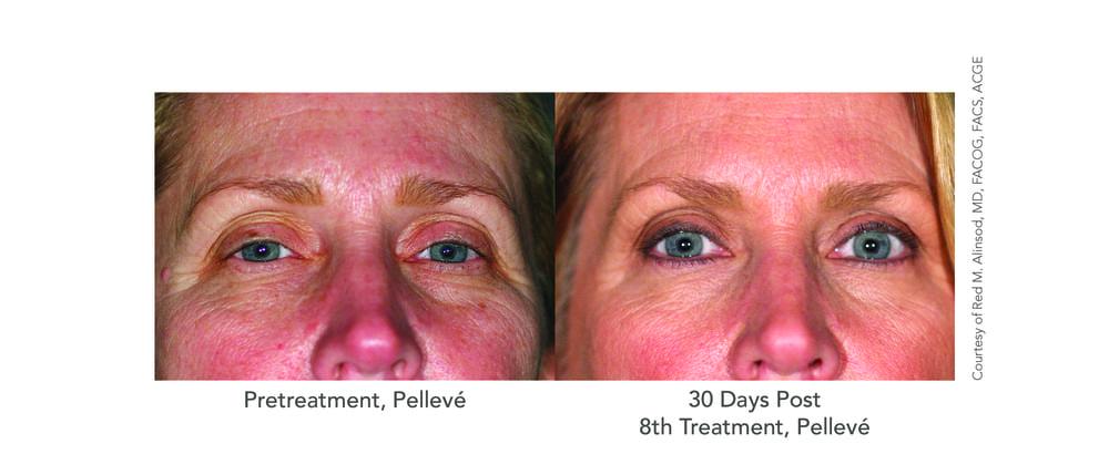Patient-3-Eyes-After-8-Pelleve.jpg