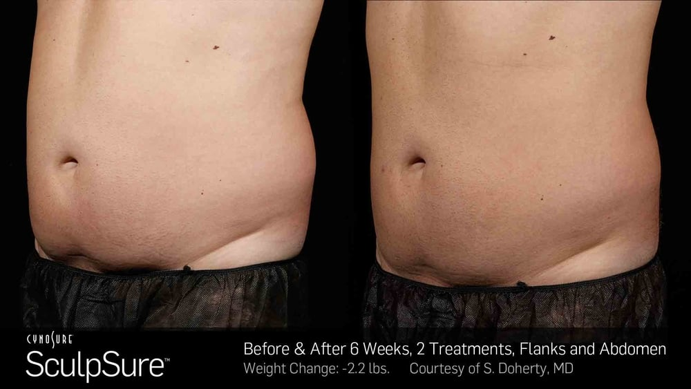 BA-SculpSure-S-Doherty-2TX-6WKs-2.jpg
