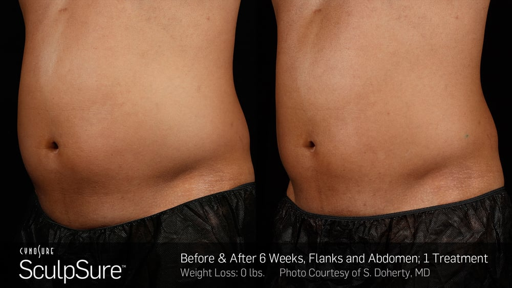 BA-SculpSure-S-Doherty-Post1Tx-6weeks-04 (1).jpg