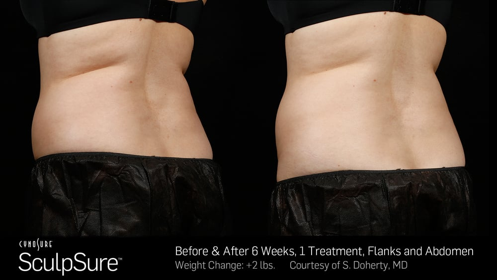 BA-SculpSure-SBS-Doherty-1TX-6Wks-3.jpg