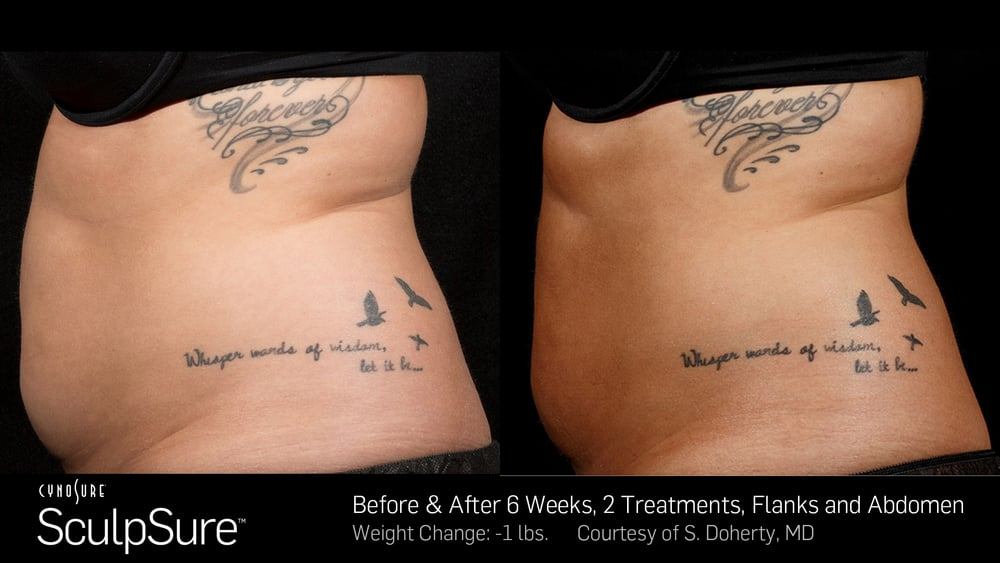BA-SculpSure-SBS-Doherty-2TX-6WKs.jpg