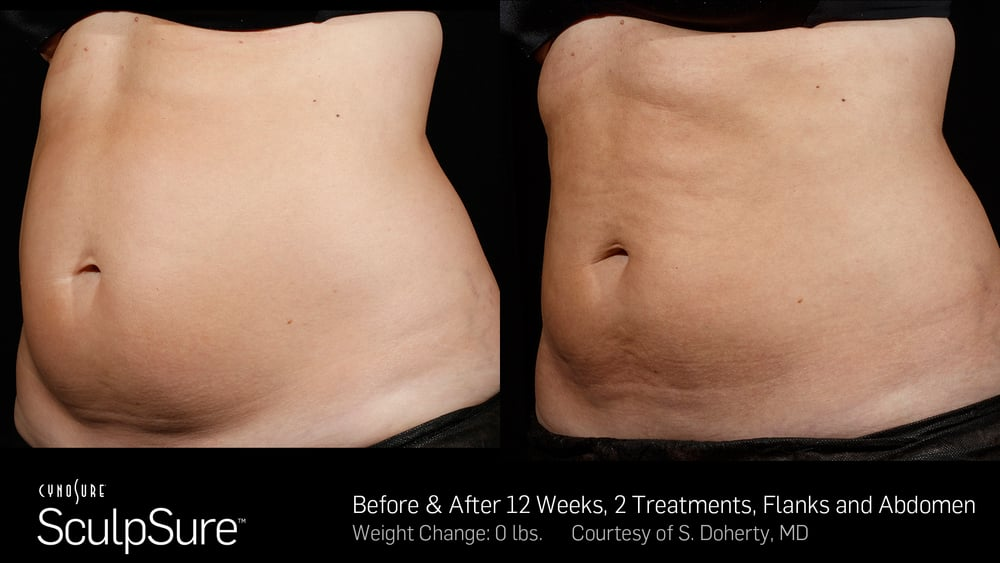 BA-SculpSure-SBS-Doherty-2TX-12WKs-2.jpg