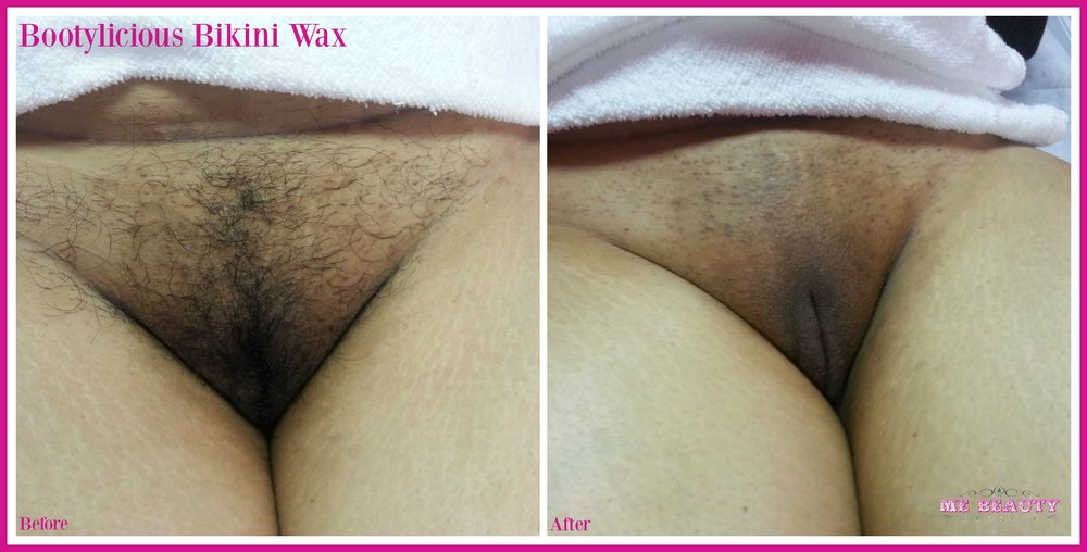 Asian American Female 30s waxed monthly for two years.  Hair growth decelerated after first year of waxing.  Now waxes every once and a while.   Photo Credit ME Beauty LLC circa September 2013