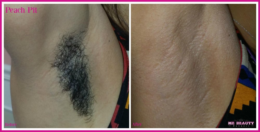African American Female 20s waxes when she travels to MI from NYC she shaves in-between.  I wax her 4 times a year.  Photo Credit ME Beauty LLC circa Junw 2014
