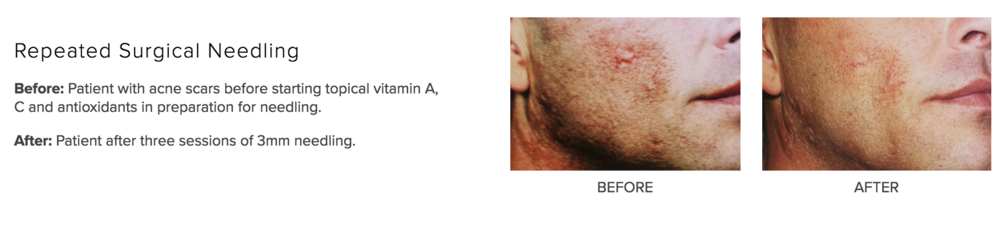 VITAMIN A:NEEDLING SCARRING.png